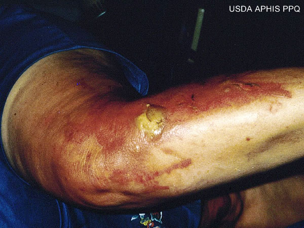 Picture of Phytophotodermatitis - WebMD